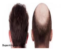 Hair transplant kerala