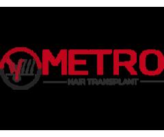 Hair Transplant in Zirakpur