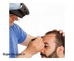 India's Most Trusted - Best Hair Restoration In Delhi